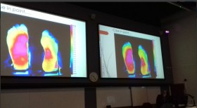 Thermal imaging research in feet affected by diabetes